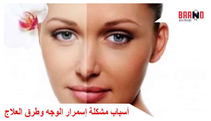 أسباب مشكلة إسمرار الوجه وطرق العلاج باستخدام الطبيعة