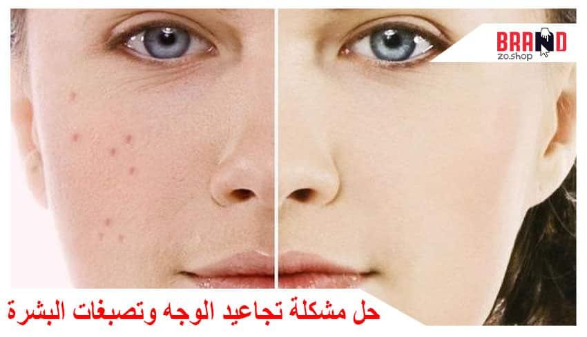 علاج تجاعيد الوجه وتصبغات البشرة