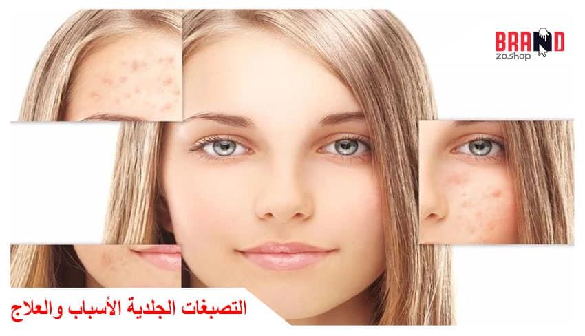 التصبغات الجلدية الأسباب والعلاج
