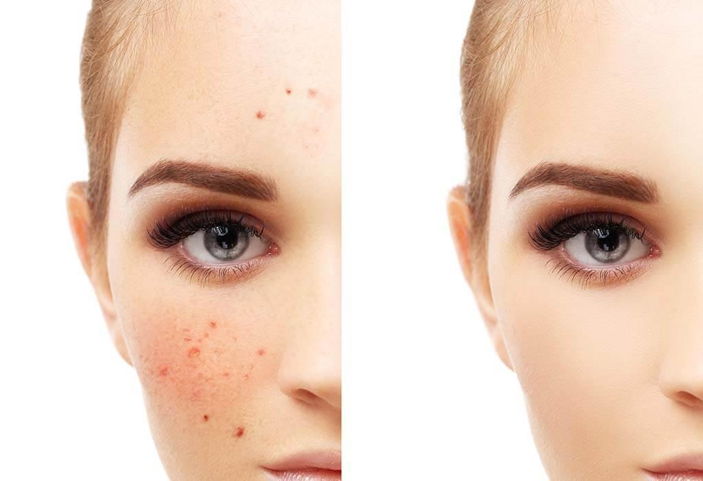 كيفية التخلص من تصبغات الوجه