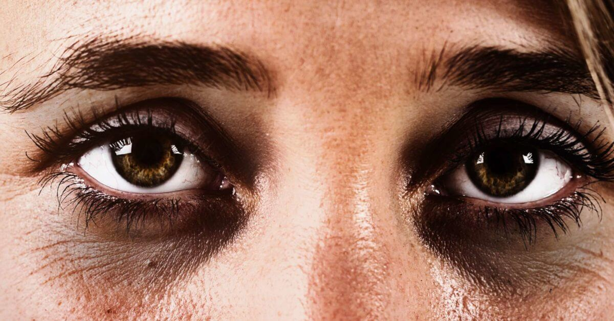 أسباب الهالات السوداء تحت العين