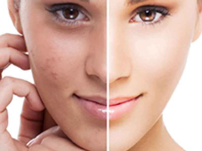 نتائج استخدام ماي بدي كريم لإزالة البقع السوداء من الوجه