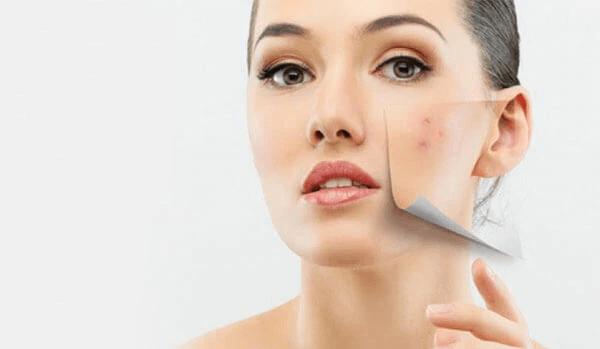 إزالة البثور السوداء من الوجه